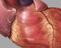 Heart, aortic valve